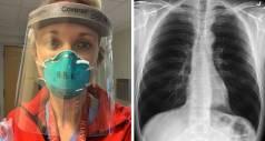 Американский хирург сравнил легкие человека, инфицированного COVID-19, с легкими курильщика